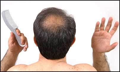 new hair growth discoveries new drug promises cure and treatment of baldness or hair