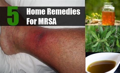5 home remedies for mrsa treatments cure for
