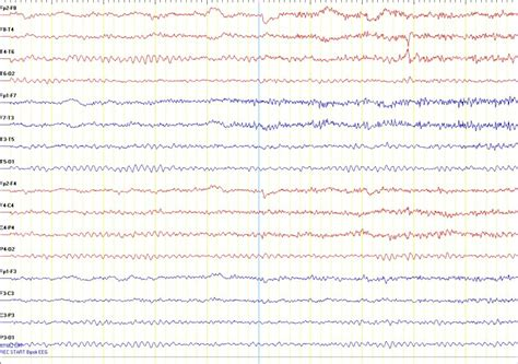 what does a seizure look like standard eeg entabeni epilepsy laboratory