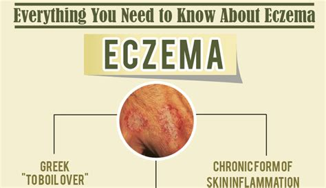 dyshidrotic eczema home remedies hrfnd