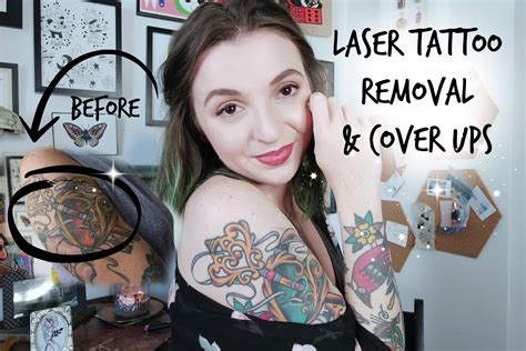youtube tattoo removal talk tuesday laser removal and cover ups