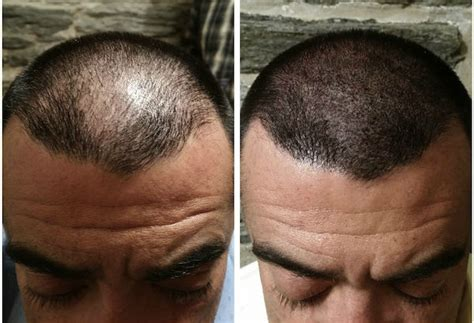 tattoo hair cost scalp micropigmentation nyc services headstrongny