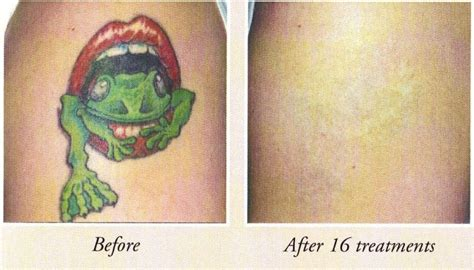 affordable tattoo removal affordable removal before and after photos
