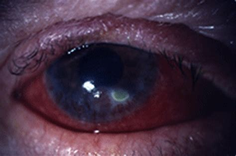corneal ulcer corneal ulcer pictures symptoms causes treatment