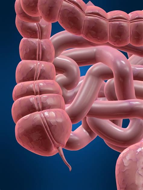 Avoid Appendix Surgery Detox by How After Getting A Laparoscopic Appendectomy Can I
