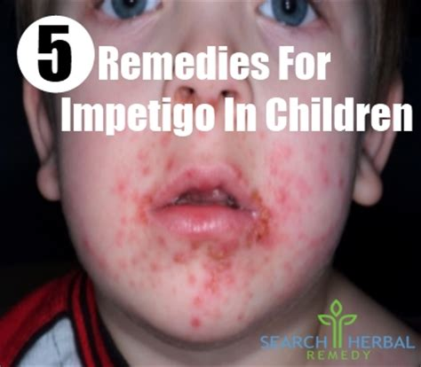 mild impetigo search results global news ini berita