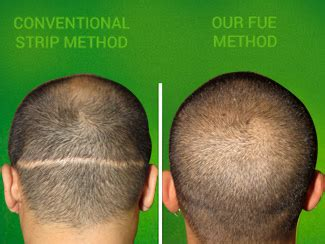 fue vs strip fue hair transplant chicago