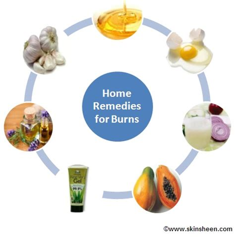 home remedies burns how to treat a burn treating burns