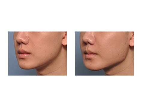 jaw line types jaw angle implants archives