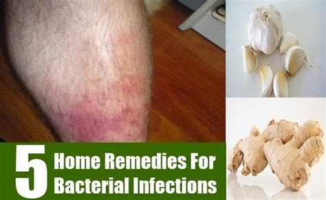 5 home remedies for bacterial infections mzizi mkavu