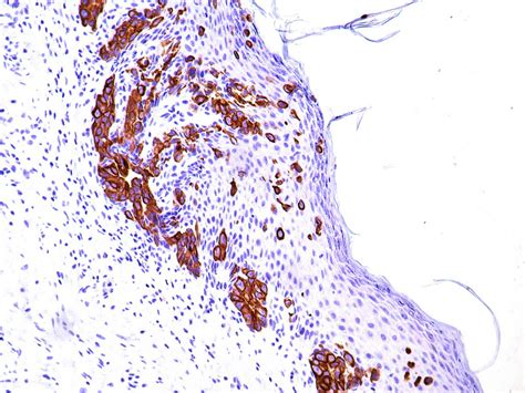 Malignant Hemangiopericytoma Pathology Outlines by Pathology Outlines Paget Disease