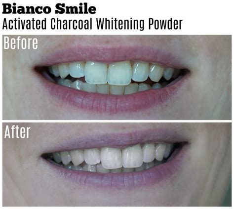 bianco smile activated charcoal whitening powder