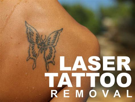 spectra laser tattoo removal spectra nd yag laser for tatoo removal lim clinic