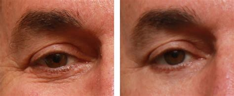 dark circles treatment epione
