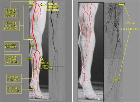 vasi arti inferiori salvataggio degli arti inferiori trattamento