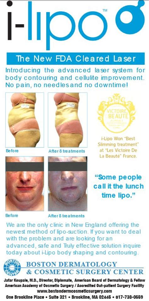 lipo light laser treatment reviews review with before and after pictures of i lipo laser