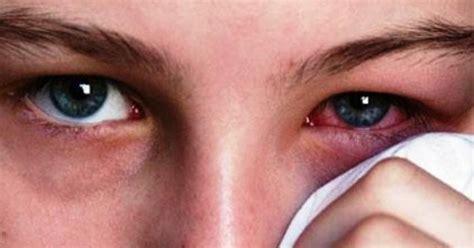 obat alami iritasi mata  daun sirih addy sumoharjo