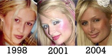 Hiltons After by Plastic Surgery Before And After Plastic