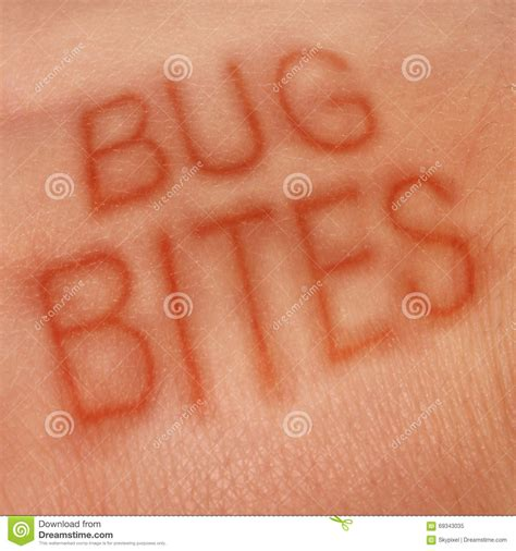 insektenstiche bett bug bites stock illustration image 69343035