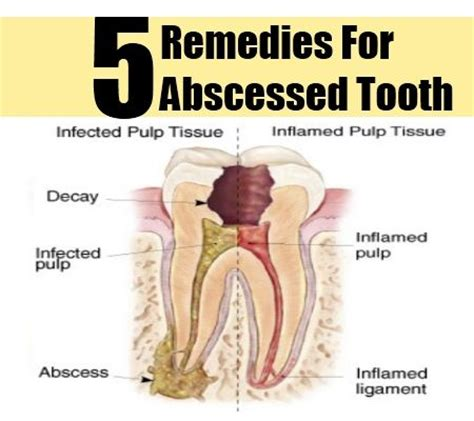74 best images about abscess tooth on