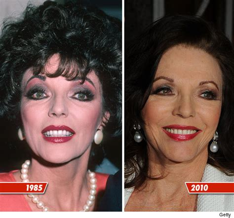 has fiona hughes had plastic surgery joan collins plastic surgery before after pictures 2016