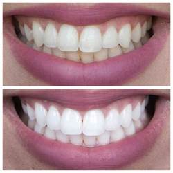 66 best teeth whitening before after results images on