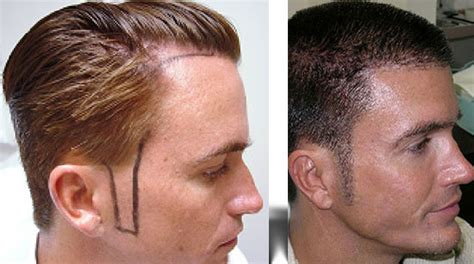 Sideburn Transplant Cost | 5 cosmetic surgeries you probably didn t know exist