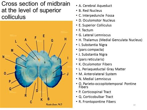 midbrain cross section pons mid brain structure blood supply cranial nerves