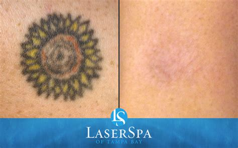 tattoo removal after laser removal laserspa of ta bay
