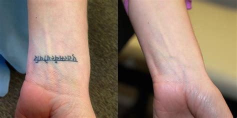 wrist tattoo removal before and after laser removal before and after photos results herts