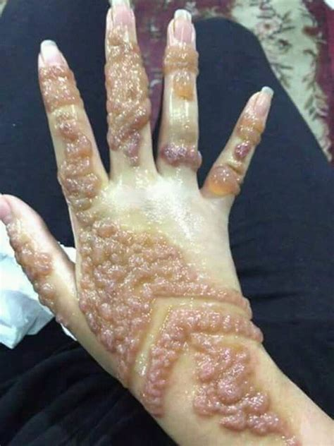 how to cure henna tattoo allergy darth bader u darth bader reddit