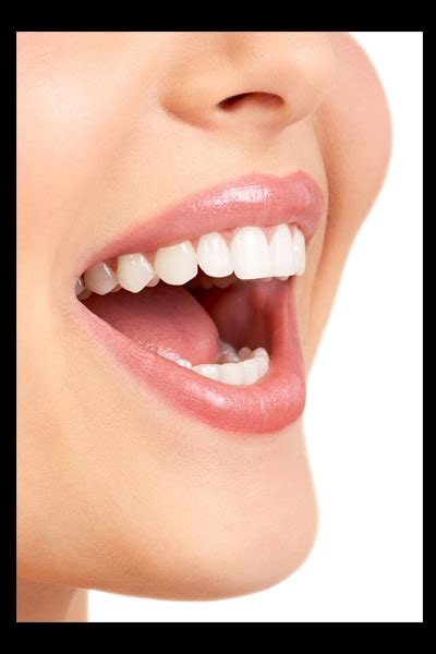 teeth whitening questions commonly asked  regina clients