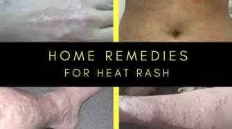 home remedies for heat rash how to get rid of heat rash home remedies for prickly heat