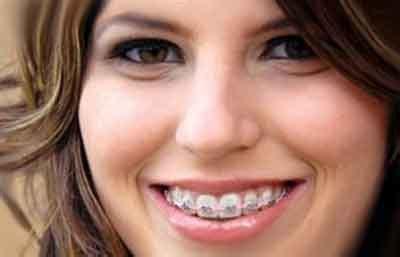 Daftar Pemutihan Gigi daftar harga pasang behel gigi di dokter gigi info tips