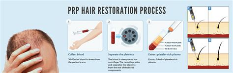 can platelet rich plasma stop hair loss and grow new hair prp therapy as hair loss treatment kl aesthetic malaysia