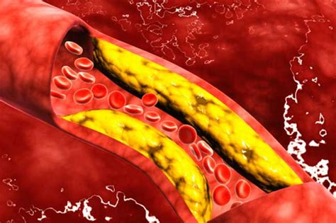 diabete alimenti da evitare e quelli permessi clean your blood vessels and clogged arteries naturally