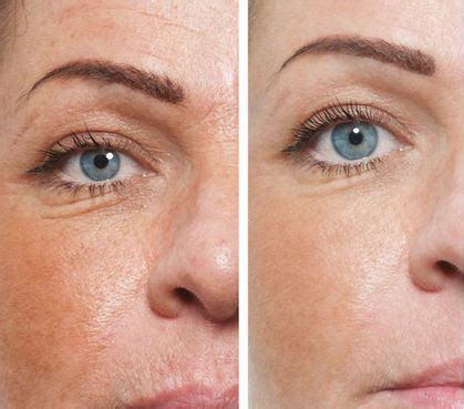 fine lines pics for gt retin a before and after under eyes