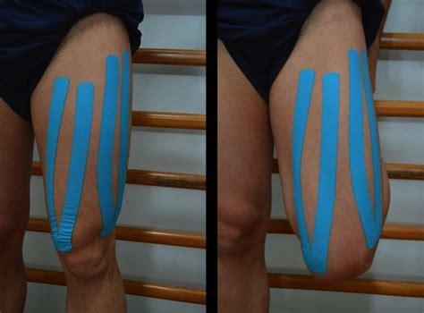 contrattura interno coscia cri muscolari alle gambe notturni cause sintomi