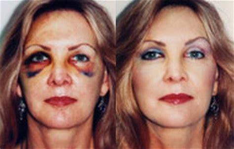 concealer makeup concealing makeup makeup concealer