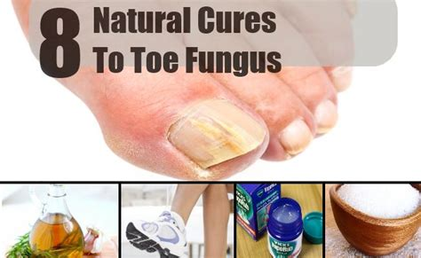 8 cures for toe fungus how to cure toe fungus