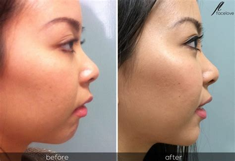 Augmentation Fill by Chin Augmentation Facelove