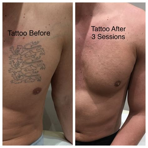 how many sessions for tattoo removal removal treatment laser