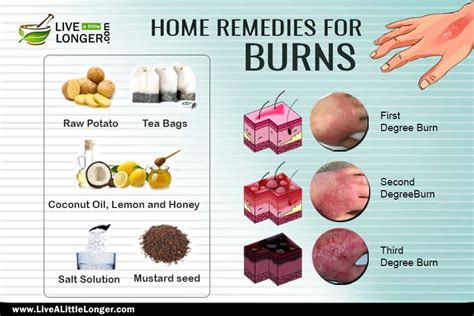 home remedies to treat a burn live a longer