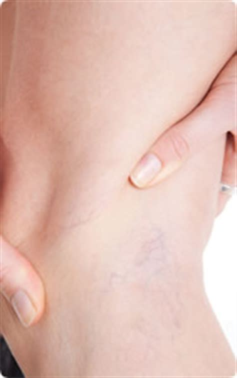 varicose veins treatment symptoms causes pictures menopause symptoms causes treatment what are the
