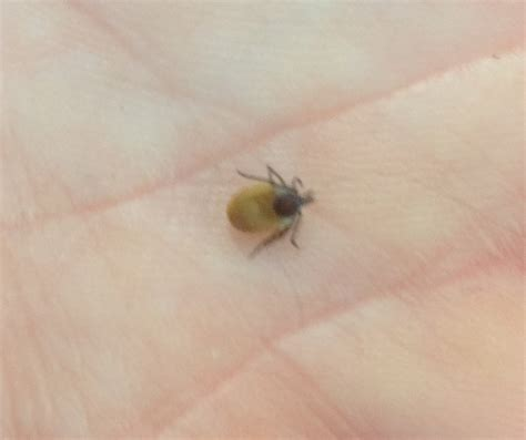 how to get a tick out of a how to remove a tick how to get rid of ticks and home tick removal breeds picture