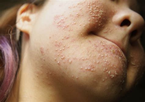 allergic rash allergic reaction rash pictures causes treatment