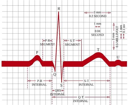 welcome difference between normal and difference between ekg and mdecg