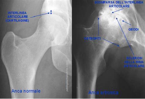 ciste in testa sintomi dott raffaello riccio artrosi dell anca coxartrosi il