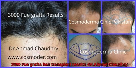 30000 hair graft cost 3000 grafts fue hair transplant results cosmoderma clinic
