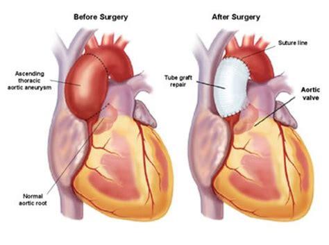 Plastik Wrap Di Lung aortic aneurysm heartupdate